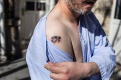 26 mars 2019. Thomas s'est mutilé avec une cigarette lors d'une crise.